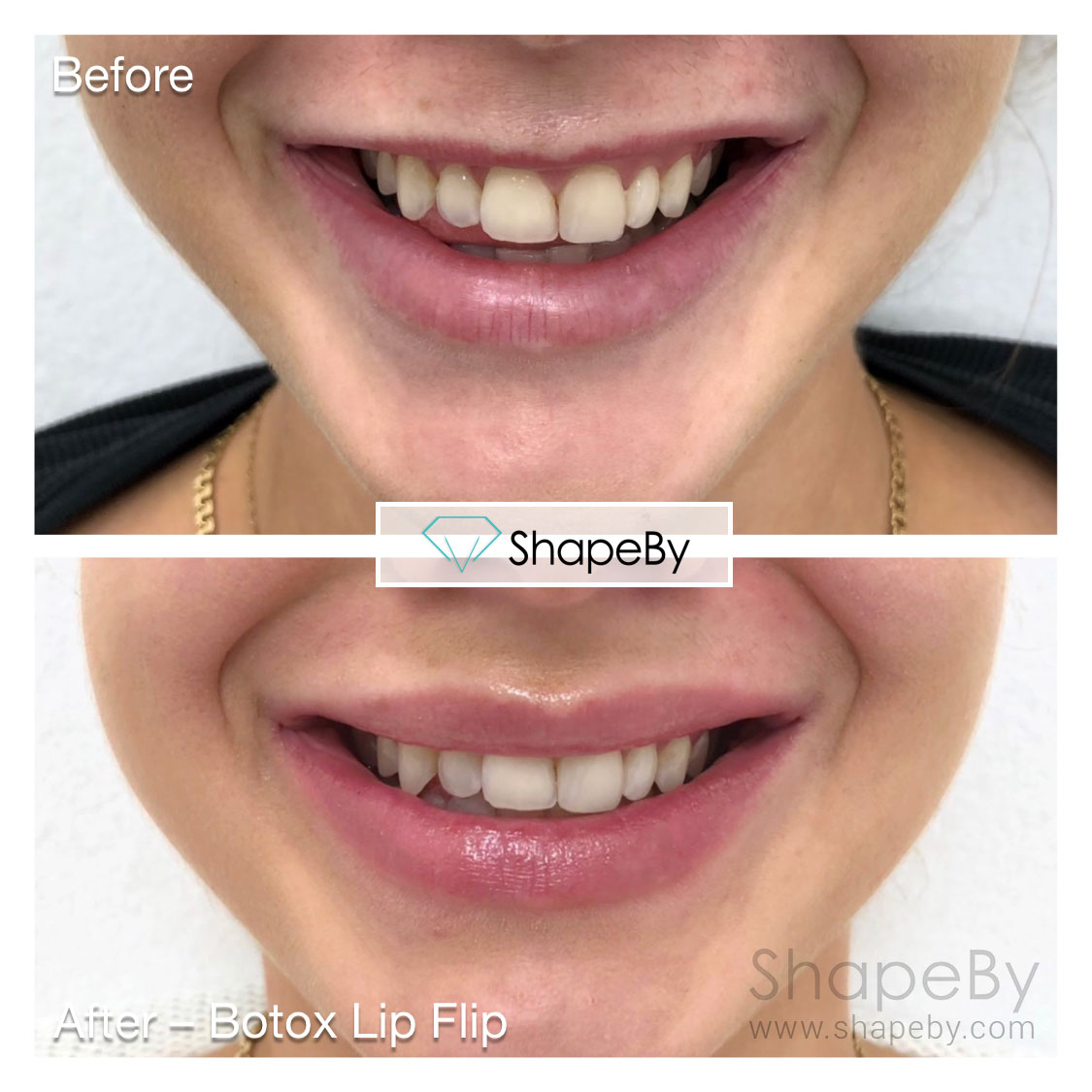 Botox Lip Flip 10.23.18